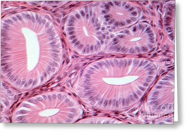 Glandular Epithelium Lm Greeting Card