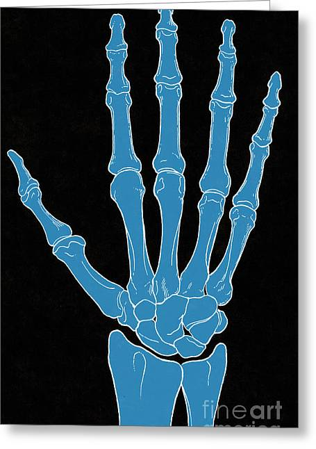 Hand And Wrist Bones Greeting Card by Science Source