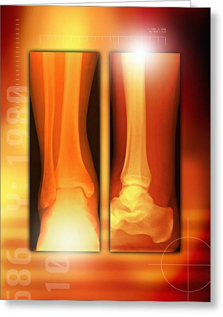 Healing Ankle Fracture, X-ray Greeting Card by Miriam Maslo
