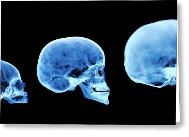 Human Skull Development Greeting Card by D. Roberts