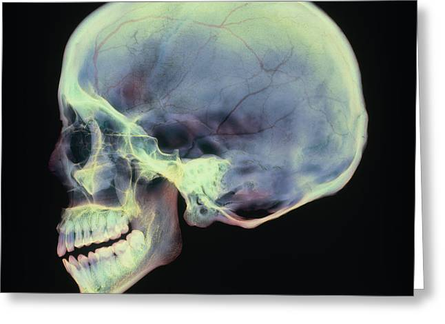 Human Skull, X-ray Greeting Card by D. Roberts