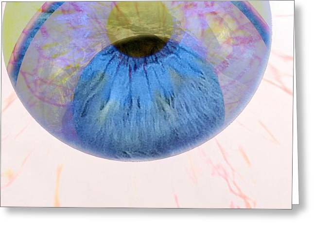 In His Eye Greeting Card by Fania Simon