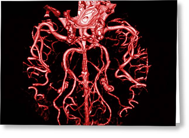 Intracranial Ct Angiogram Greeting Card