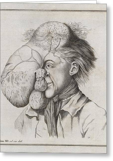 Large Tumour Of The Head, 18th Century Greeting Card