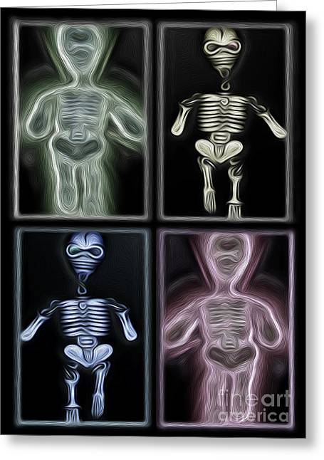 Lazy Bones Greeting Card by Gregory Dyer