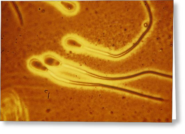 Light Micrograph Of Sperm From A Bull Greeting Card by Dr T E Thompson