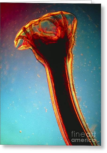 Lm Of Posterior End Of Hookworm Greeting Card by Eric Grave