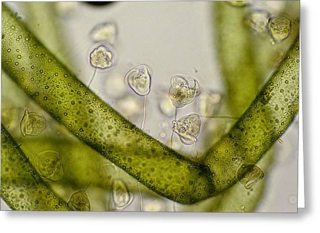 Lm Of Vorticella Ciliates On A Green Alga Greeting Card