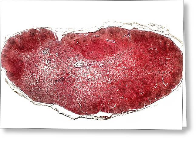 Lymph Gland, Light Micrograph Greeting Card by Dr Keith Wheeler