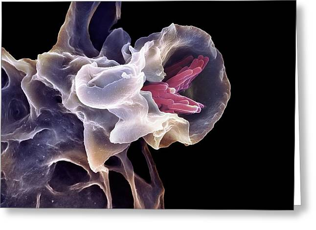 Macrophage Engulfing Tb Bacteria, Sem Greeting Card