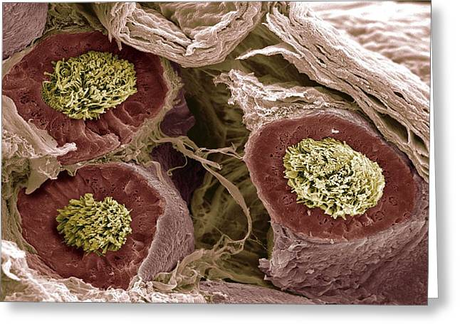 Maturing Sperm, Sem Greeting Card by Steve Gschmeissner