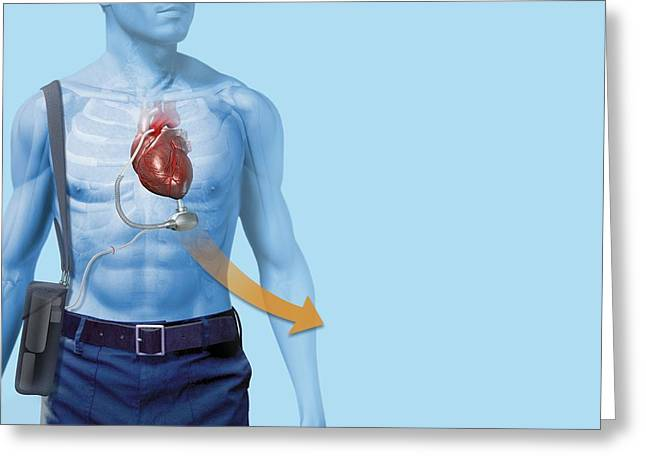 Mechanical Heart Pump, Artwork Greeting Card