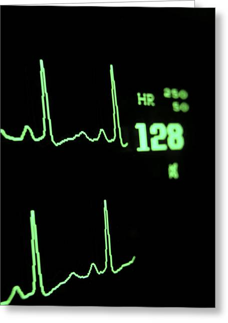 Medical Monitor Displaying Pulse Greeting Card by Greg Dale