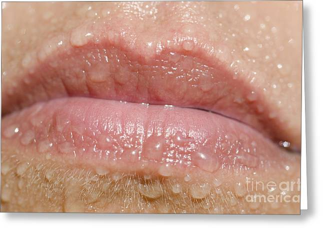 Mouth With Water Drops Greeting Card