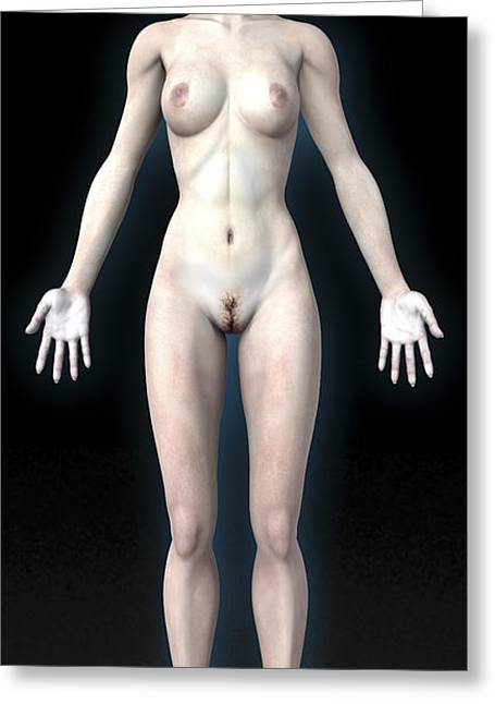 Naked Woman Greeting Card by Christian Darkin