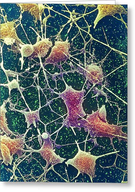 Nerve Cells, Sem Greeting Card by Steve Gschmeissner