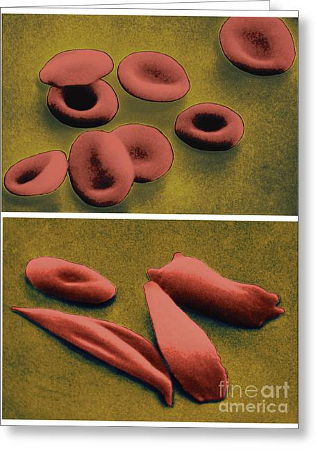 Normal And Sickle Red Blood Cells Greeting Card by Omikron