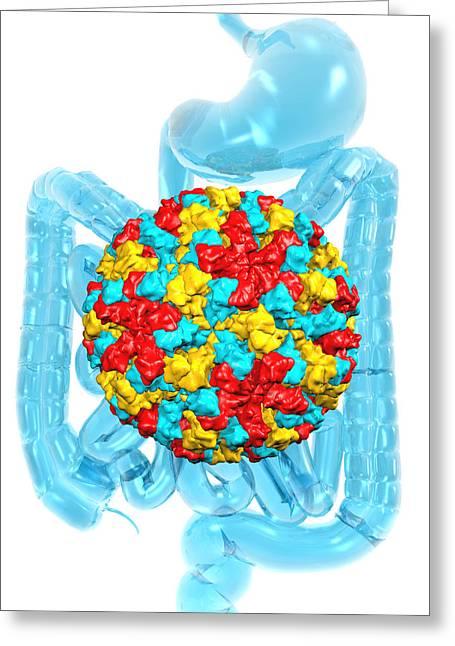 Norwalk Virus Infection Greeting Card by Laguna Design