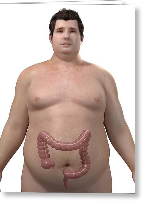 Obese Man's Colon, Artwork Greeting Card