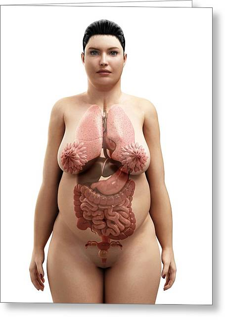 Obese Woman's Organs, Artwork Greeting Card by Sciepro