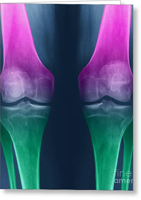 Osteoarthritis Of The Knees Greeting Card by Ted Kinsman