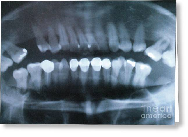 Panoramic Dental X-ray Greeting Card by Science Source