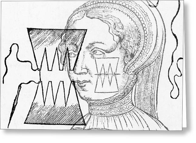 Par� Suture, 1500s Greeting Card by Science Source