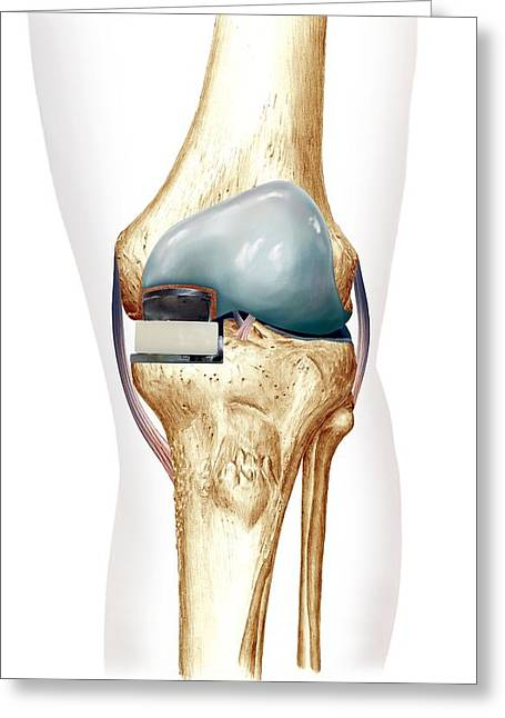 Partial Knee Replacement, Artwork Greeting Card by D & L Graphics