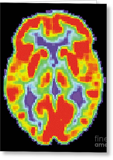 Pet Scan Of Normal Brain, 1 Of 2 Greeting Card by Science Source