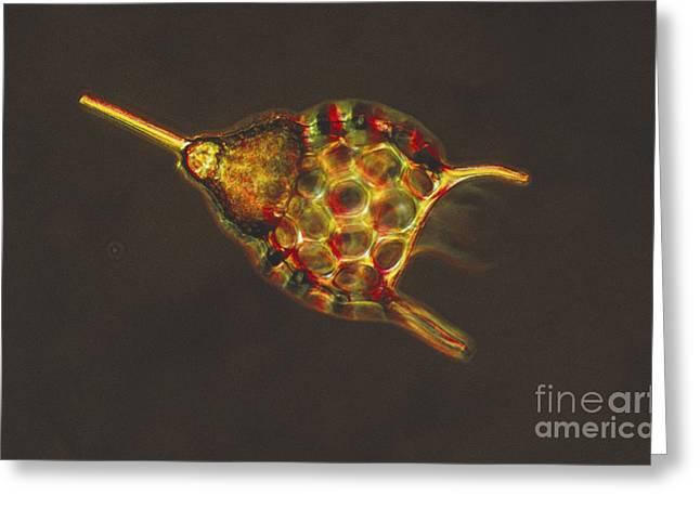Podocyrtis Triacantha Lm Greeting Card