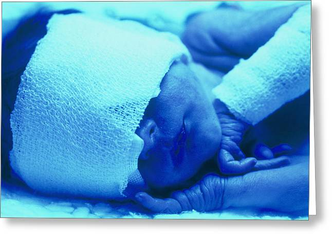Premature Baby With Jaundice Having Phototherapy Greeting Card