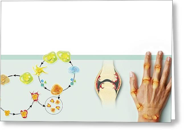Rheumatoid Arthritis Mechanism, Artwork Greeting Card by Claus Lunau