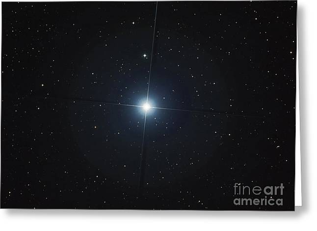 Rigel Is The Brightest Star Greeting Card