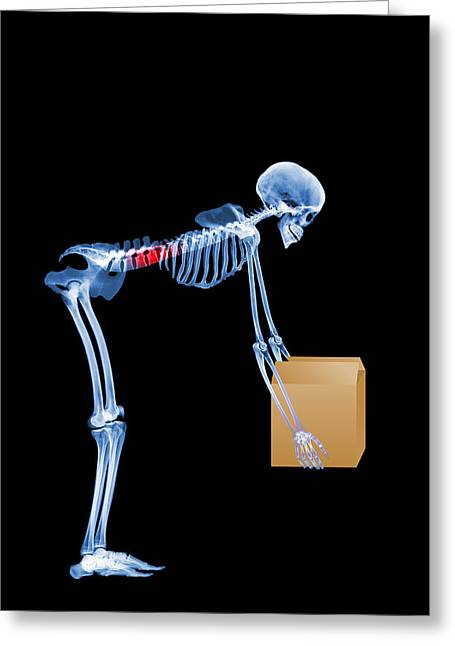 Skeleton Lifting A Box Incorrectly Greeting Card by D. Roberts