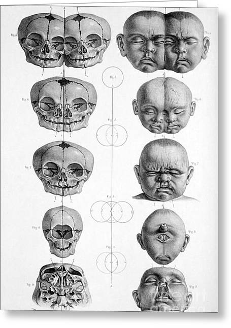 Surgical Anatomy 1856 Greeting Card by Science Source