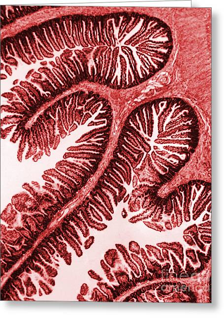 Tem Of Intestinal Villi Greeting Card by Science Source