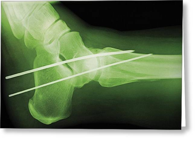Temporary Ankle Immobilisation, X-ray Greeting Card by Miriam Maslo