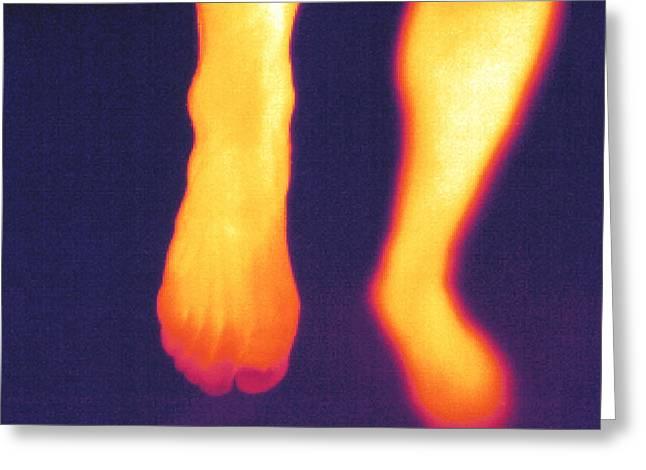 Thermogram Of Feet Greeting Card by Pasieka
