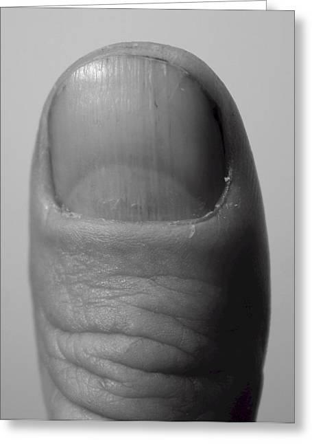 Thumb Greeting Card