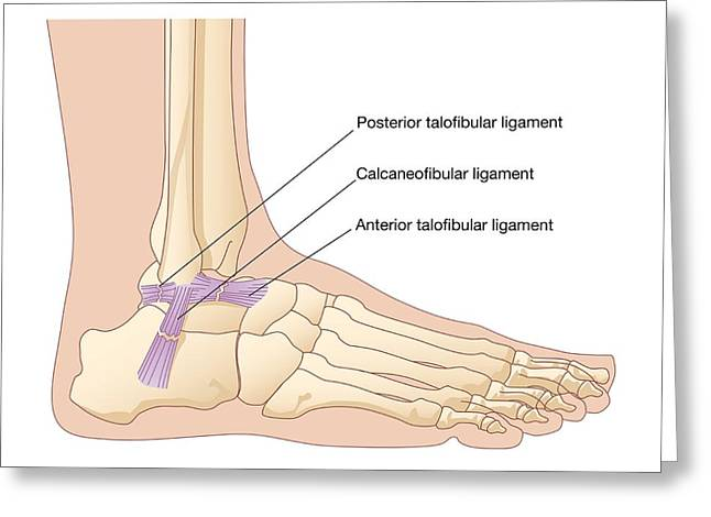 Torn Ankle Ligaments, Artwork Greeting Card by Peter Gardiner