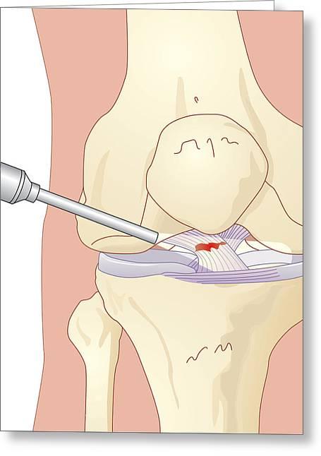 Torn Cruciate Ligament, Artwork Greeting Card by Peter Gardiner