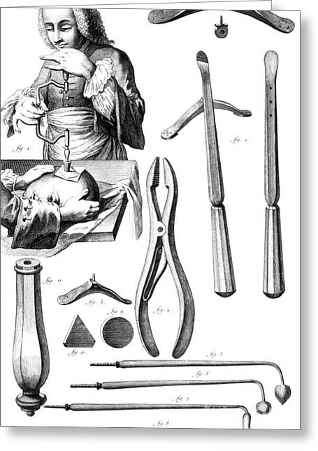 Trepanning, 1772 Greeting Card by Science Source