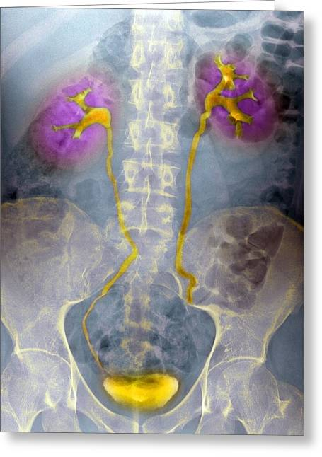Urinary System, X-ray Greeting Card