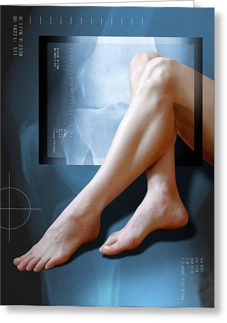 Woman's Legs, With Knee X-ray Greeting Card by Miriam Maslo