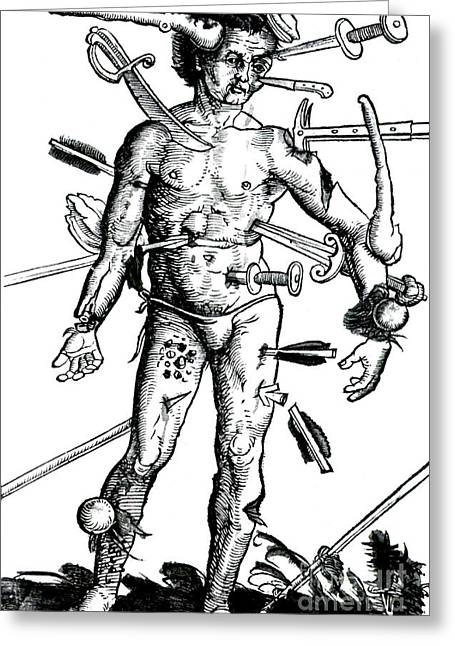 Wound Man 1517 Greeting Card by Science Source