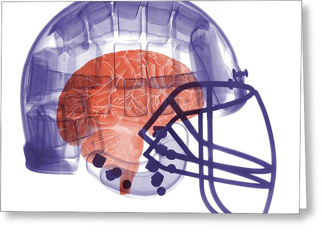 X-ray Of Head In Football Helmet Greeting Card by Ted Kinsman