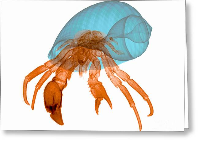 X-ray Of Hermit Crab Greeting Card by Ted Kinsman