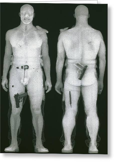 X-ray Views Of Man During Bodysearch Surveillance Greeting Card