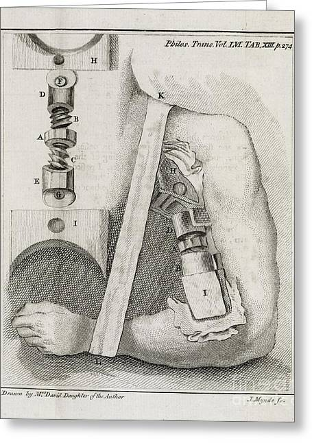 Bone-setting Mechanism, 18th Century Greeting Card by Middle Temple Library