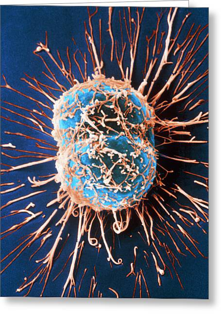 Division Greeting Cards - Cervical Cancer Cells Dividing Greeting Card by Steve Gschmeissner